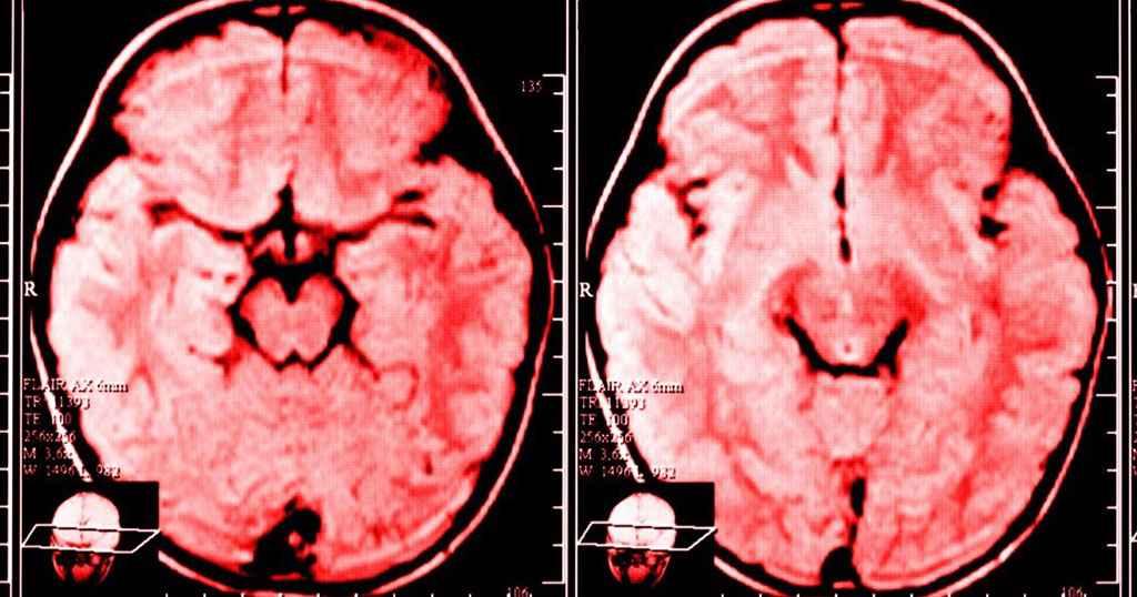 Γκρινιάζετε κάθε μέρα; Δείτε τι παθαίνει ο εγκέφαλός σας!