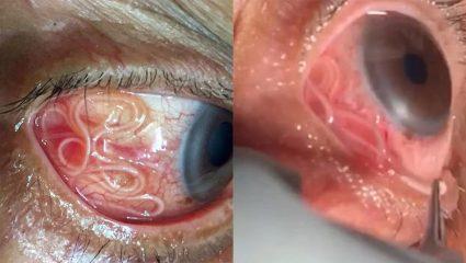 Γιατρός έπρεπε να αφαιρέσει σκουλήκι 15 εκατοστών από μάτι ασθενή! (ΒΙΝΤΕΟ)
