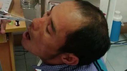 Tι είναι αυτό το αηδιαστικό πλάσμα που βγήκε από τη μύτη ενός άντρα;