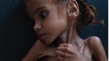 «Έφυγε» από την πείνα η 7χρονη, σύμβολο του λιμού στην Υεμένη