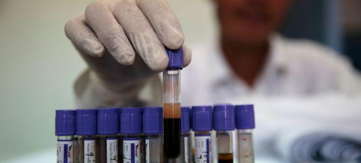 Tεστ αίματος ανιχνεύει οποιονδήποτε καρκίνο μέσα σε δέκα λεπτά