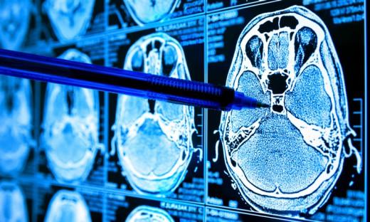 «Όπλο» κατά του καρκίνου νέο σύστημα τεχνητής νοημοσύνης- Έλληνας ο επικεφαλής της επιστημονικής ομάδας