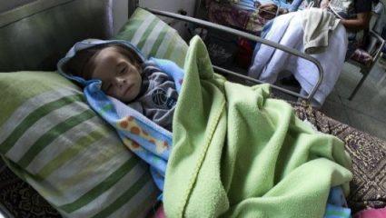 Σοκάρει η εικόνα αποστεωμένου παιδιού σε νοσοκομείο της Βενεζουέλας (ΦΩΤΟ)