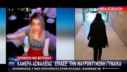 Επίθεση με βιτριόλι: «Την είδα, μπορώ να την αναγνωρίσω» – Το πρώτο βίντεο ντοκουμέντο από τη μαυροφορεμένη γυναίκα (Vid)