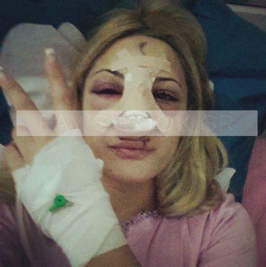 Ιωάννα Τούνη:  H σοκαριστική φωτό μετά το χειρουργείο (Pic)