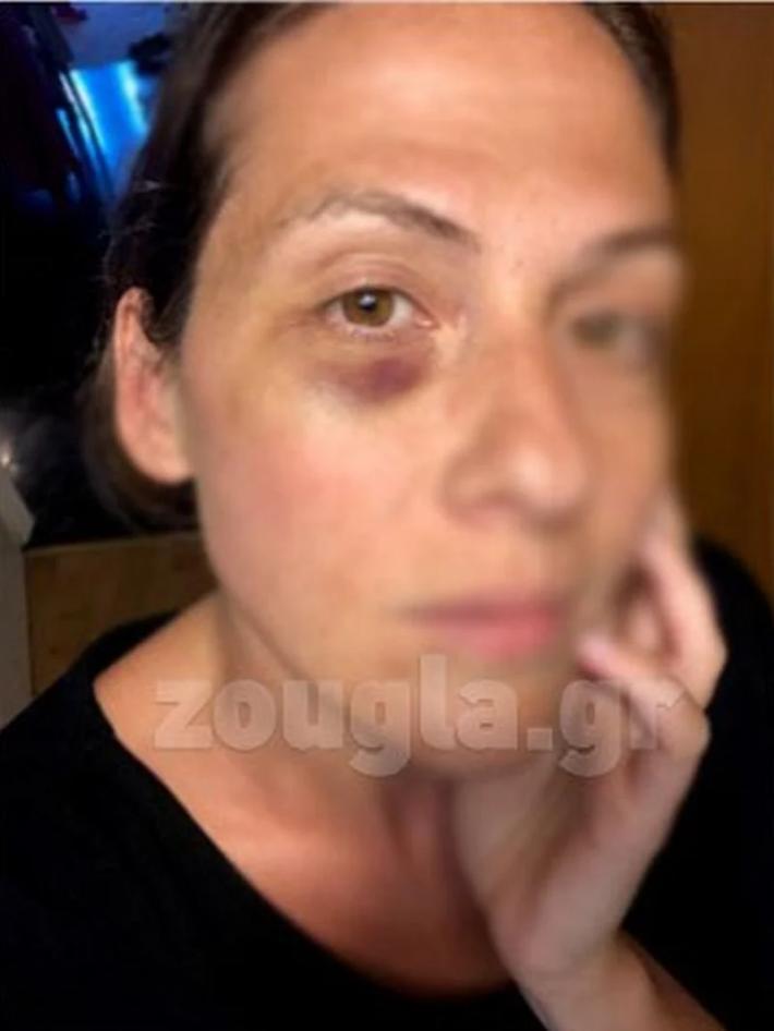 Μήνυση σε βάρος του Κώστα Δόξα από τη σύζυγό του: «Με χτυπούσε ακόμα κι όταν ήμουν έγκυος» (Pics)