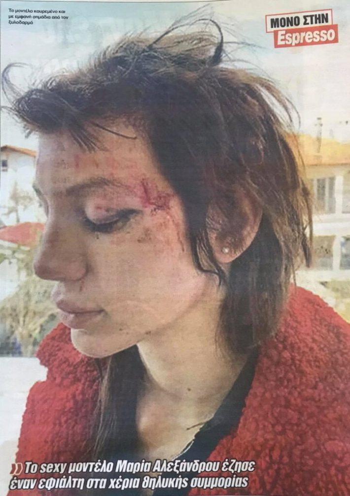 Μαρία Αλεξάνδρου: Mήνυση για τον ξυλοδαρμό της