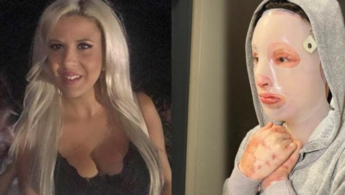 «Εγώ έριξα το βιτριόλι στην Ιωάννα»: Ομολόγησε τα πάντα η 35χρονη